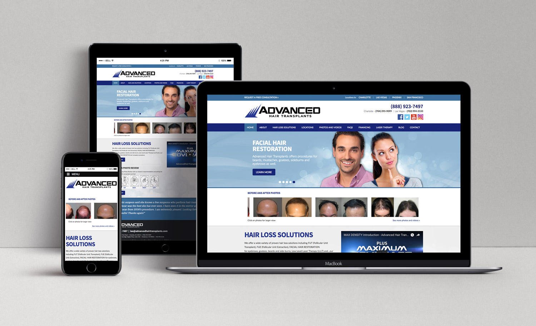 Advanced Hair Transplants website